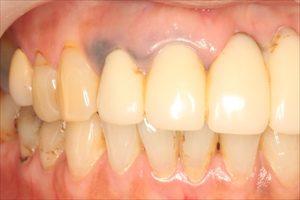 レーザーで除去前の歯ぐきの黒ずみ