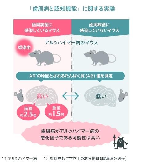 Pg菌とアルツハイマー型認知症の関連性