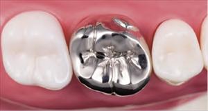 歯科用金属(12%金銀パラジウム)