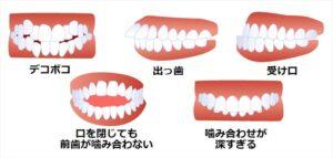 思うようではない歯並び