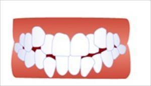 歯並びの不正