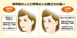 鼻呼吸の人と口呼吸の人の顔立ちの違い