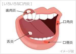 口内炎の種類