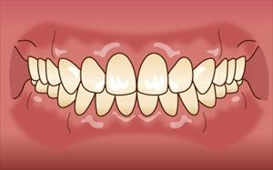 正しい歯並び