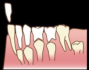 歯の生え替わり
