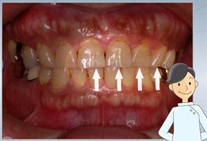 極端なる歯の切端部の摩耗