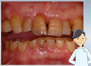 歯の表面のヒビや亀裂