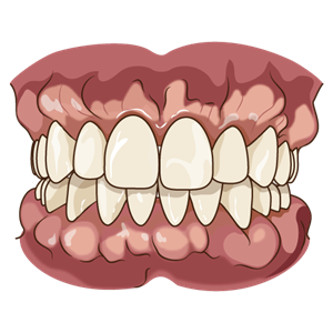 歯ぐきのモコモコ(外骨症)