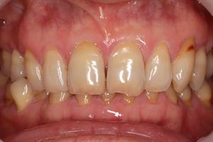 歯ぎしり・くいしばりで下の前歯が見えなくなる