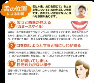 舌の位置による影響