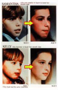 イギリスの姉妹の呼吸による顔付きの相違