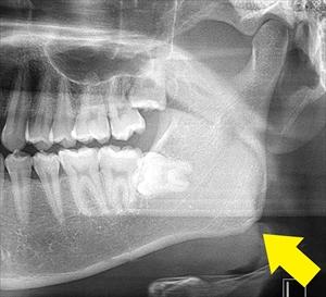 TCHや歯ぎしり頻度が高い方の顎角部