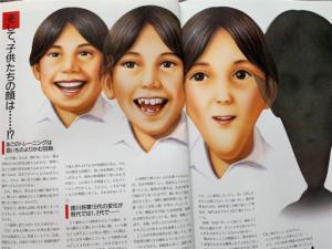 顎の未発達に伴う顔貌の変化
